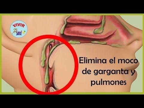 Así lograrás eliminar las flemas de tus pulmones - YouTube