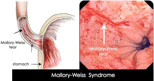 síndrome de mallory weiss fisiopatología de la diabetes
