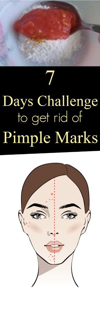 She removed pimples and acne in just one week with this red paste