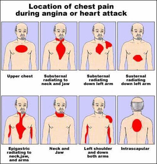 Angina or heart attack
