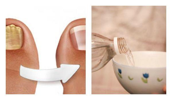La onicomicosis o los hongos en las uñas es una infección muy común y afecta, con mayor fr