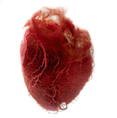 Corazón humano con la grasa y el tejido eliminados dejando sólo los vasos sanguíneos