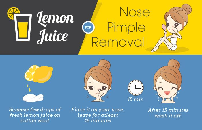 How To Get Rid of Pimples On Nose (5 Ways To Remove)