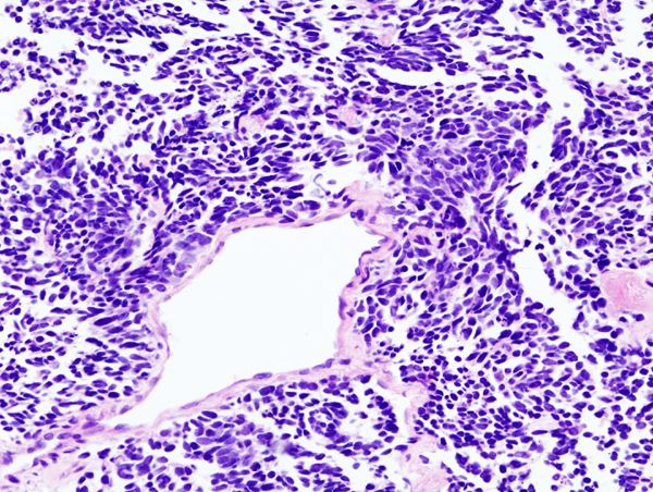 Lung small cell carcinoma (2) by core needle biopsy - Small-cell carcinoma - Wikipedia, the free encyclopedia