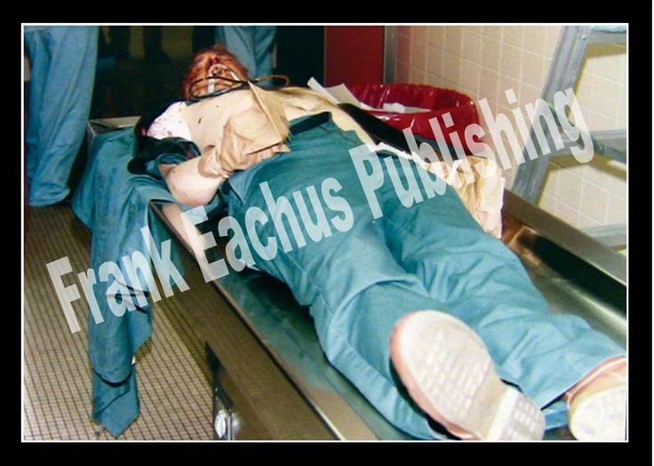 Celebrity Death Photos; shown is Jeff Dahmer after Christopher Scarver got through with him.  WARNING: GRAPHIC!!!! - Page 58