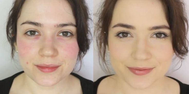 A little concealer goes a long way.