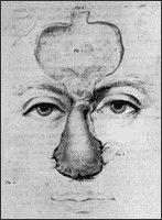 Rhinoplastiek of Neuscorrectie wordt al beschreven in oude Indiase Sanskriet teksten daterend 600 jaar voor onze jaartelling. De chirurg Sushruta beschrijft hierin een methode om de neus te herstellen middels plastische chirurgie.  http://www.hoffkliniek.be/behandelingen/neuscorrectie