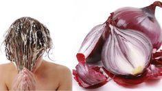Červená cibule udělá s vašimi vlasy zázraky Foto: