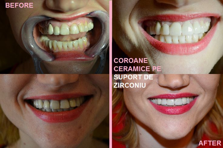 All-ceramic single anterior crowns with translucent zirconium, cosmetic dentistry, DDS Tiberiu Cazan