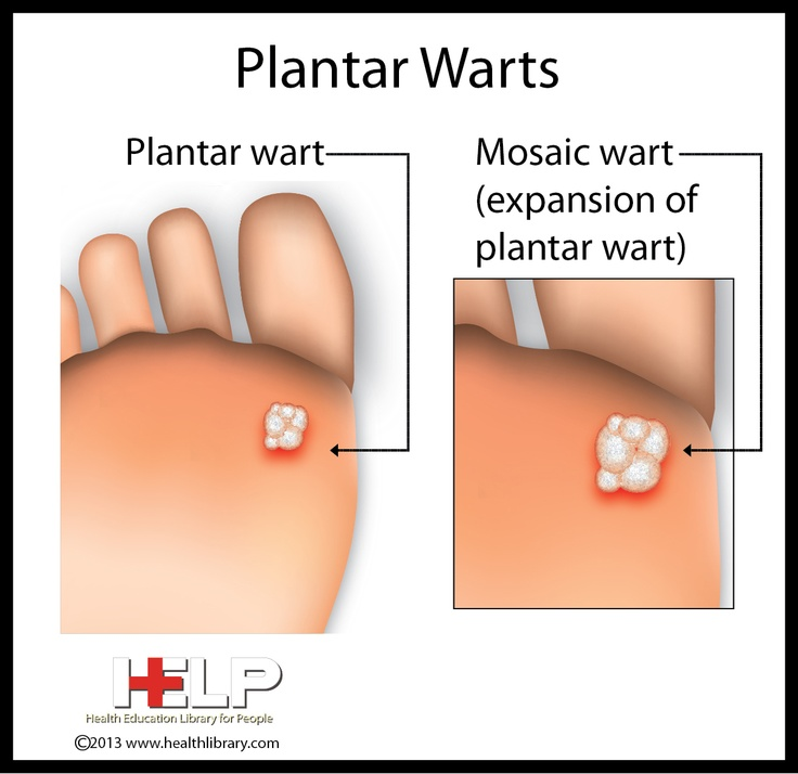 Plantar Wart Treatments Natural