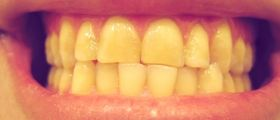 Denti Gialli? Scopri 10 rimedi fa-da-te per averli più bianchi