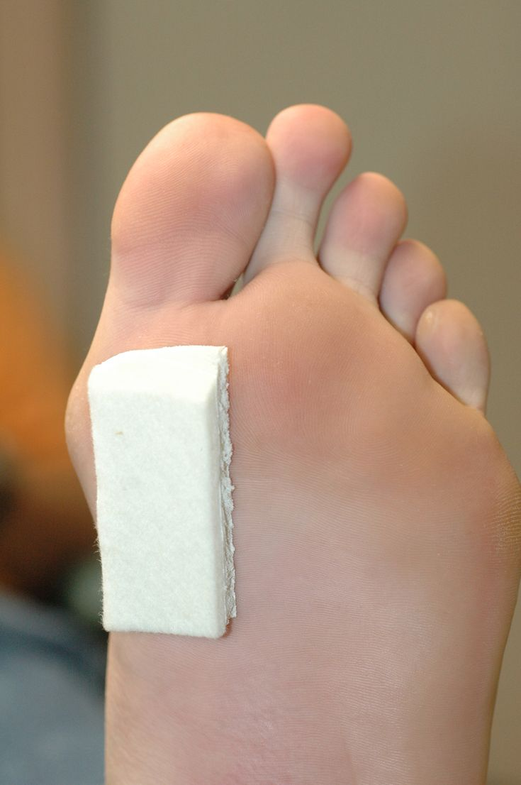 Basic Morton's Toe Pad used for all problems of the body and foot associated with having a Morton's Toe