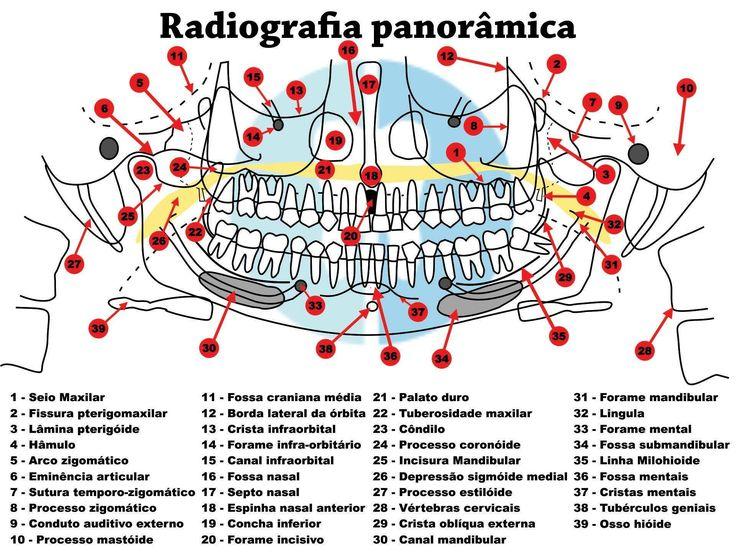 Talvez você seja estudante de Odontologia… talvez você seja cirurgião-dentista… talvez você já seja um especialista em Radiologia experiente.Seja qual situação se aplique ao seu caso, estudar anatomia nunca é demais! Eu já disponobilizei aqui no blog uma mini-apostila de anatomia radiográfica, mas achei legal que vocês tivessem acesso aoesquema de acidentes anatômicos em radiografia ...