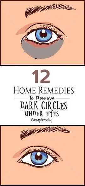 12 Simple Home Remedies For Dark Circles Under Eyes