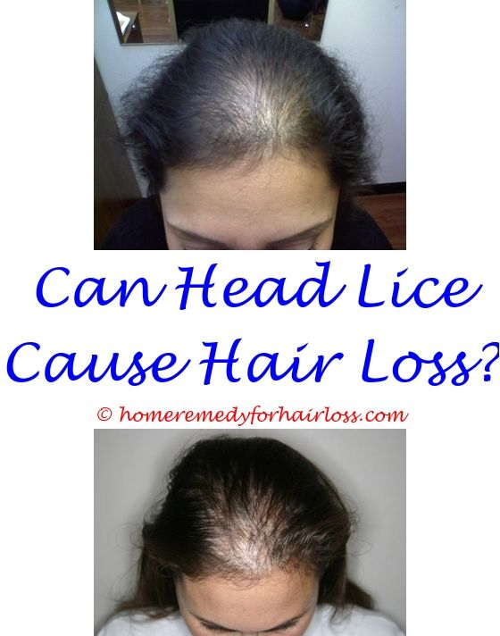 does alopecia hair loss treatment work - zonegran hair loss.can epilepsy medication cause hair loss male hair loss spray icd 9 code for hair loss unspecified 1971199369
