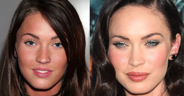 Celebrities Before And After Their Plastic Surgery Transformations