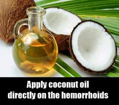 Hemorrhoid Coconut Oil - Top 28 Natural foods to Cure Piles - Home Remedies for Hemorrhoid