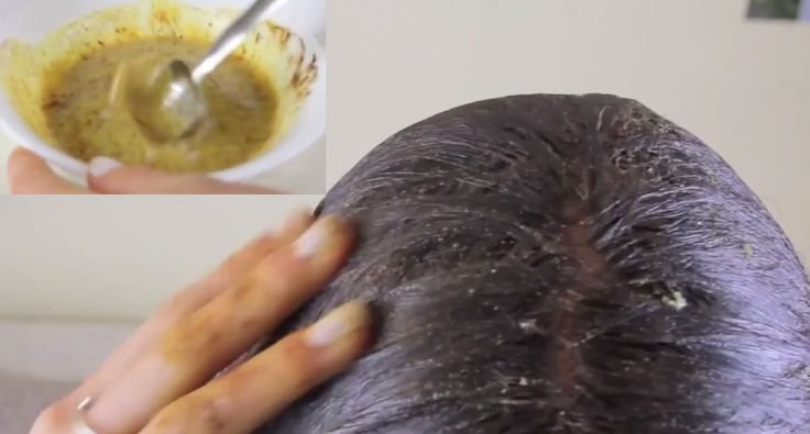Ce Masque Permet Une Pousse Cheveux 4 Fois Plus Accélérée Mais Attention Ne Laissez Pas Plus De 15 Minutes | Coiffure simple et facile