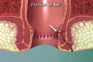 Bahaya Penyakit Fistula Ani Dan Cara Mengobatinya