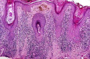 Universidad de Florida descubre cura para Lupus.
