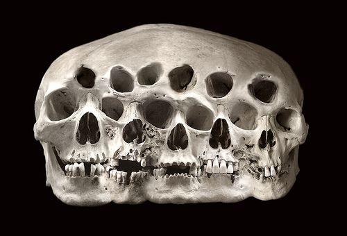 Quintuple skull
