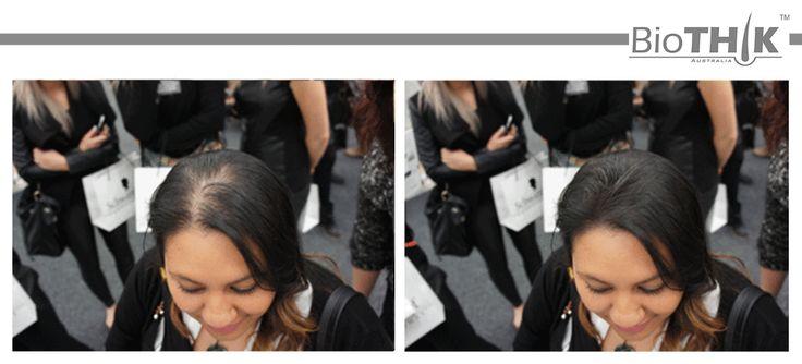 26 Best Hair Restoration B Amp A Images On Pinterest Hair