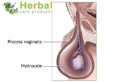 34 Best Images About Hydrocele Treatment On Pinterest ...