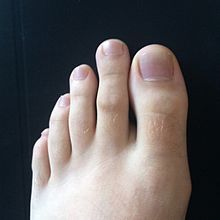 Morton's toe - Wikipedia    In some people with Morton's toe, the second toe is clearly longer than the big toe.