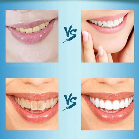 Early Teeth Whitening Products Activated Charcoal …