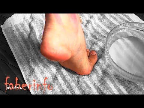 Убрать трещины на пятках ДОМА за 3 ДНЯ! Показываю ДО и ПОСЛЕ / Мой опыт - YouTube