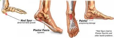 Heel Spurs are no fun! Check out our Heel Spur Inserts to relieve your foot pain today.