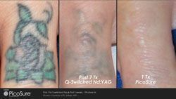 Laser Tattoo Removal Hartford CT | Tattoo Removal Connecticut | PicoSure Tattoo Removal Weathersfield #tattooremovalpicosure #KidsTattooRemoval #removetattoos
