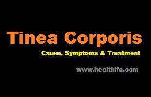 Tinea Corporis - Cause, Symptoms and Treatment