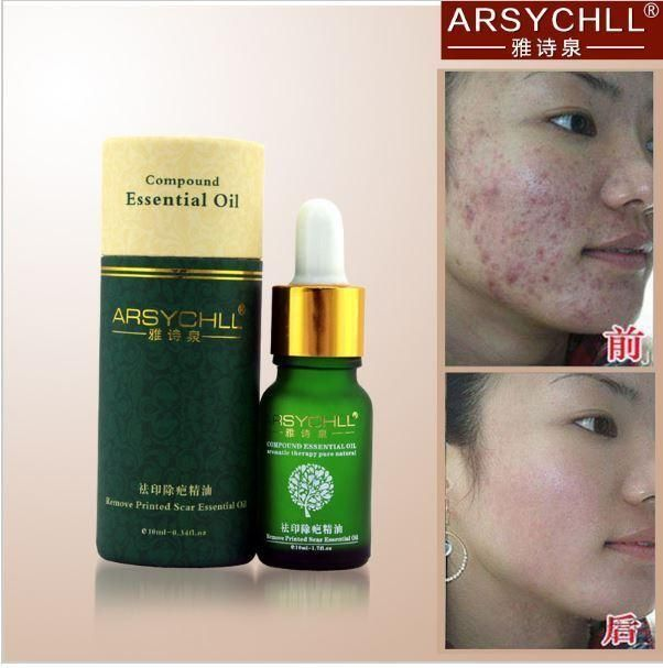 https://tvdh.myshopify.com/products/face-care-acne-scar-removal-cream-acne-spots-skin-care-treatment-stretch-marks