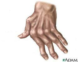 Arthritis in the hands can be helped with paraffin wax baths.