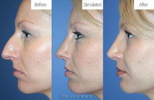 Before, Simulated and After Rhinoplasty results