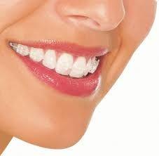 una sonrisa delicada