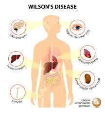 wilson disease leads to damage to liver and basal ganglia.