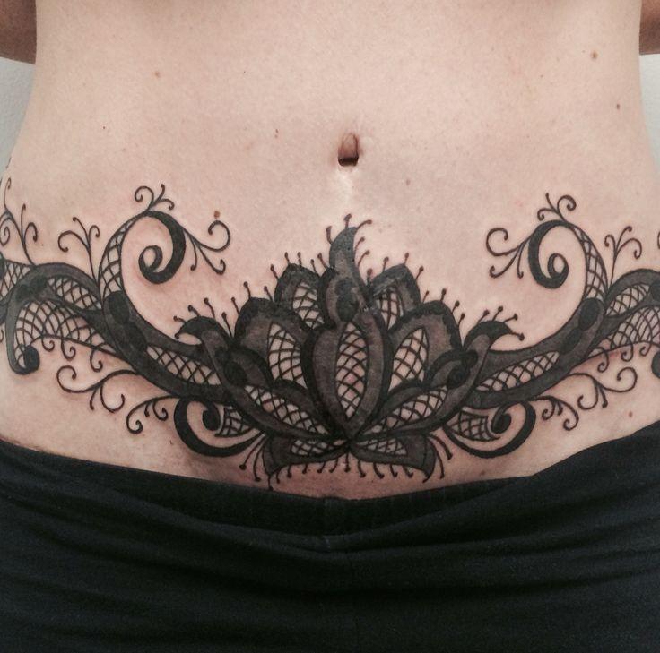 Abdominal scar tattoo cover