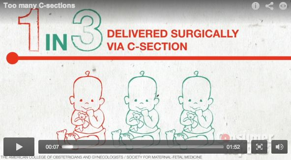 c-section-consumer-reports
