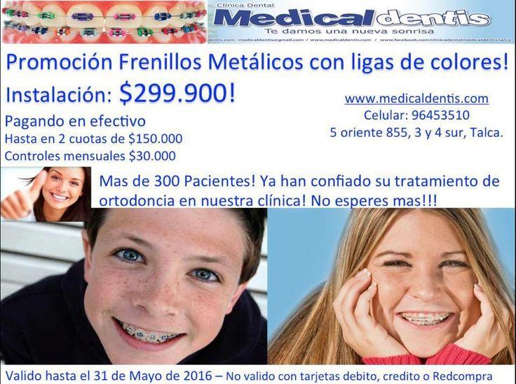 $299.900! Promoción Frenillos Metálicos! Pide tu hora X Facebook o llamando al 96453510 o en medicaldentis.com