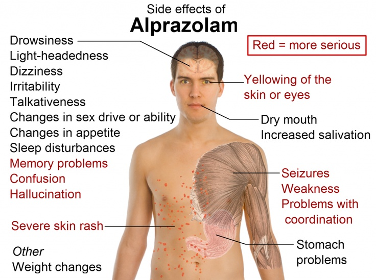 Side_effects_of_alprazolam,Alprazolam is commonly used and FDA approved for the medical treatment of panic disorder, and anxiety disorders, such as generalized anxiety disorder (GAD) or social anxiety disorder (SAD) and also as sleep inducing agent.  Alprazolam is the most prescribed and the most misused benzodiazepine on the U.S. retail market.
