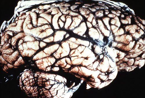 Kuru Cannibalism | Kuru Infected Brain