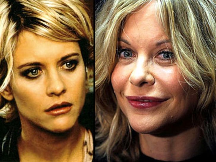 Chatter Busy: Meg Ryan Plastic Surgery