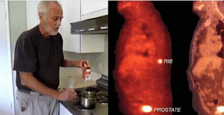 El cáncer es una de las enfermedades que más vidas acaba a nivel mundial. Muchos son los tipos de cáncer y afectan tanto a hombres como a mujeres con dolencias específicas. A las mujeres puede llegarles a dar cáncer de cuello uterino o de ovarios y a los hombres el cáncer de próstata. Sin duda