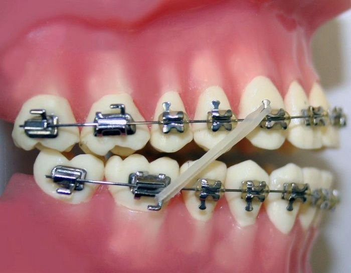 43 Best Braces Pictures Images On Pinterest Teeth Braces
