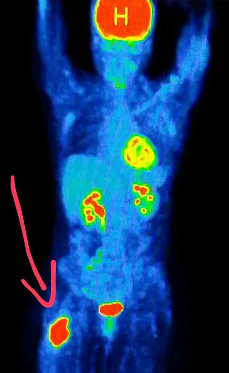 Why is it necessary to PET scan the whole body in cancer patients?