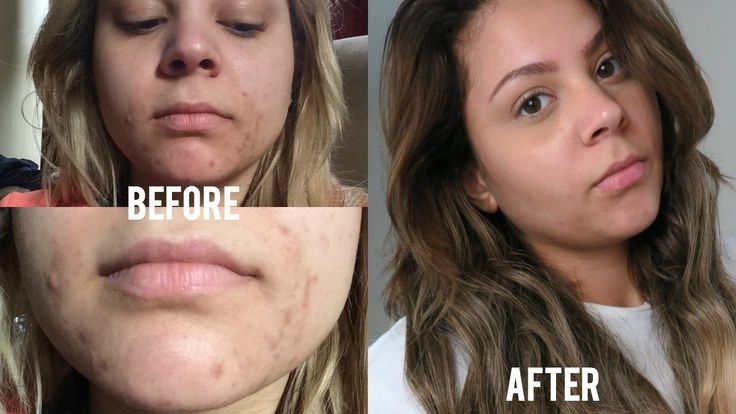 How I Faded My Acne Scars FAST!