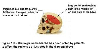 16 best headache locations images on pinterest headache. Black Bedroom Furniture Sets. Home Design Ideas
