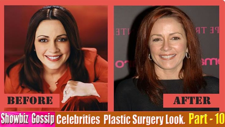 101 Celebrities Plastic Surgery Before and After Look. (91-101) | Part -...